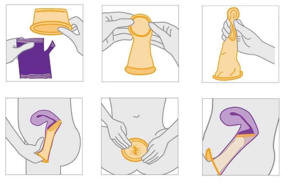 Female condom - use